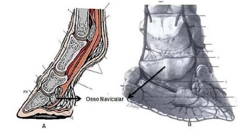 Síndrome do Navicular, também conhecida como Podotrocleose, merece um grau de atenção elevado quando o assunto é claudicação em equinos